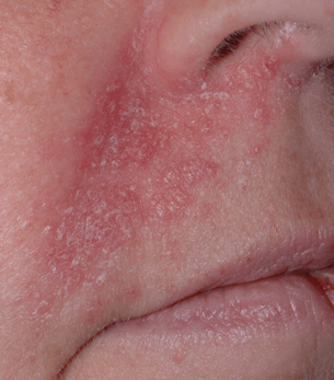Salbe Hautausschlag